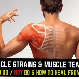 Muscle Strains & Muscle Tears | What to Do / NOT Do & How to Heal From Them